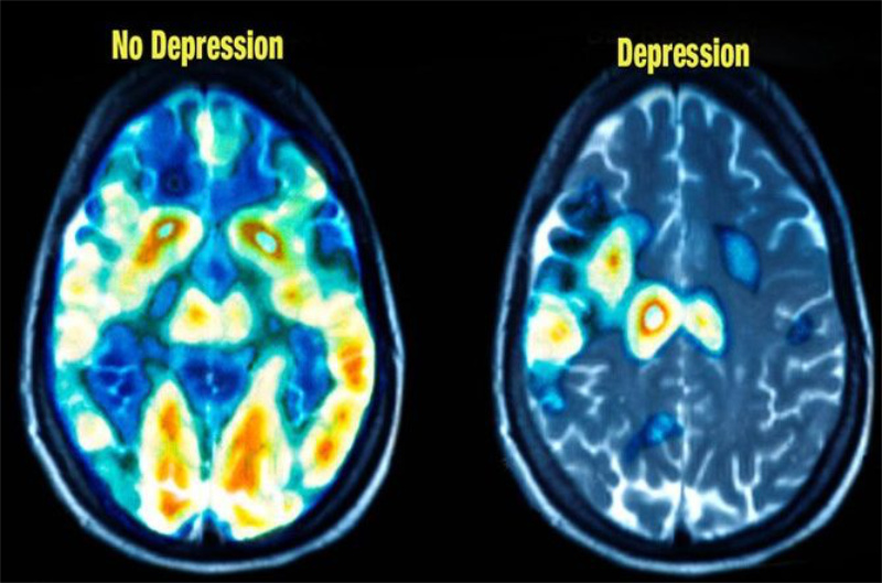 brain scan with depression